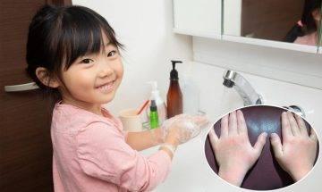 【武漢肺炎】酒精搓手液可引致手部濕疹?3招教你洗手同時護手!|抗疫特集