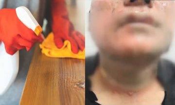 【武漢肺炎】暖爐旁使用消毒酒精 男子不慎「自焚」| 教你正確使用酒精5大守則