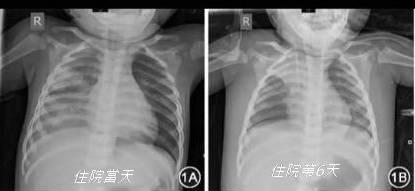 【新冠肺炎】1歲男童初現肚瀉及後確診 醫生:家長勿輕視消化道病徵