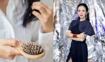 脫髮困擾|41歲章子怡疑產後髮線上移 皮膚科醫生:脫髮可控制以免致情緒病