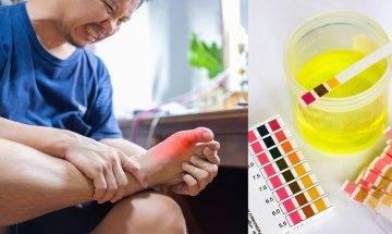 預防痛風4對策 嚴控飲食 避免大吃大喝積聚尿酸