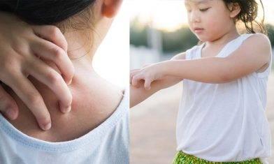 了解4大皮膚敏感成因  中醫分享戒口食物清單|草本藥膏推介 舒緩紅腫痕
