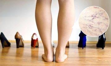 小腿腫脹青筋暴現 靜脈曲張主因不只穿高跟鞋 預防+手術一覽