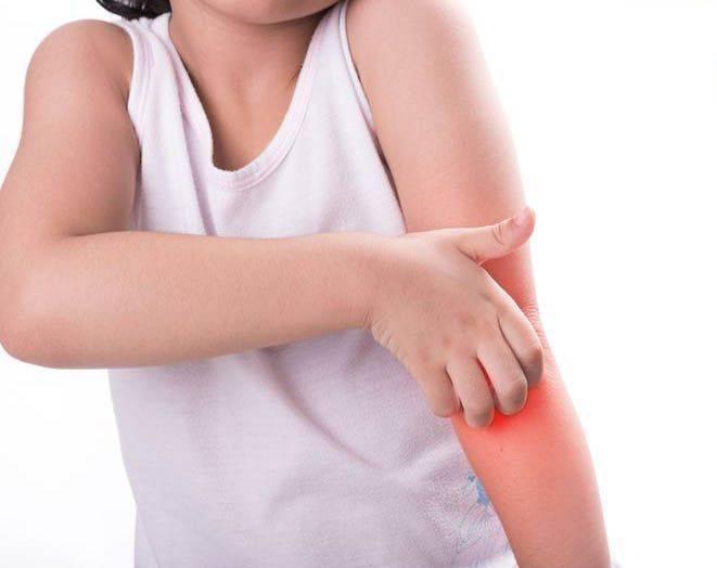 銀屑病易惡化至關節 醫生:非傳染病但勿當濕疹醫