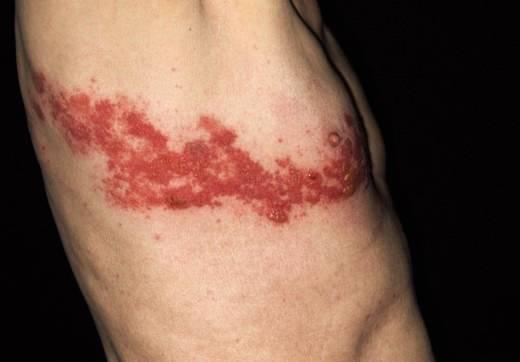 曾患水痘最易生蛇 打預防疫苗減低病發