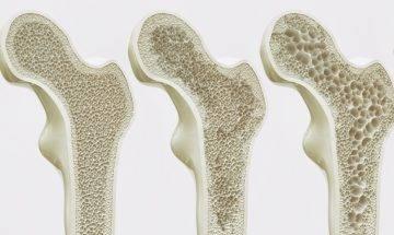 減肥減到骨質疏鬆 | 營養師教5大預防骨質流失貼士+3日補鈣餐單