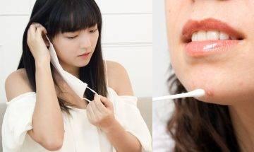 長帶口罩暗瘡爆發 自療暗瘡疑呈抗藥性 醫生:勿濫用抗生素