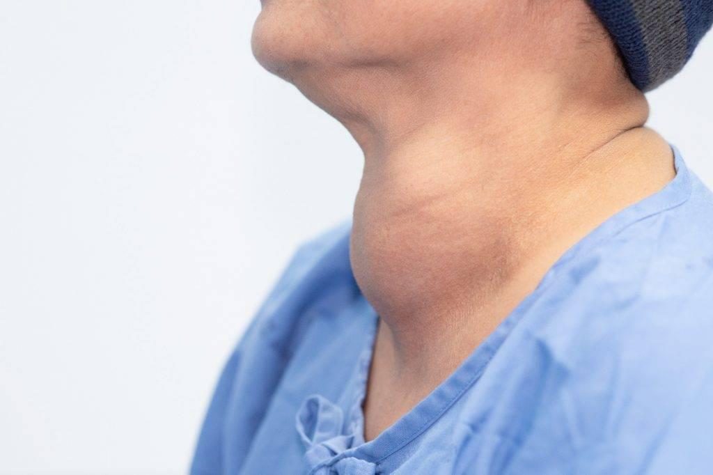 調查指港人缺碘,或致甲狀腺腫大。