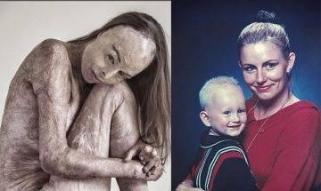 媽媽為母則強勇救兒子逃出火場致全身85%燒傷 前選美皇后拍全裸寫真鼓勵同路人