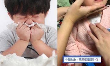 孩子肺脾腎氣虛易有鼻敏感  中醫推薦食療+睡眠+飲食紓緩