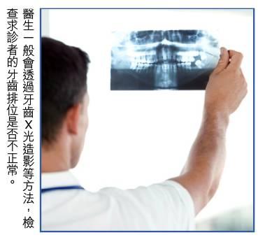 哨牙+倒及牙+牙齒不齊 慎選牙套防感染 | 牙醫:孩童7歲前矯齒較快復元