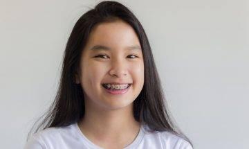 少女網購劣質平價牙套矯齒染惡菌 | 牙醫:7歲開始矯齒檢查 效果最好