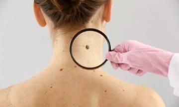 皮膚癌分2大類 炎夏曝曬誘發黑素瘤皮膚癌+預防5招