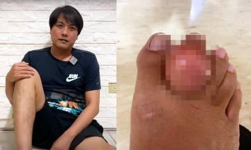 台灣YouTuber生痛風石腫如乒乓波 分享清創手術過程|4大預防痛風對策+飲食建議