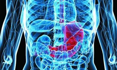 少吃重口味食物 減低患胃癌風險