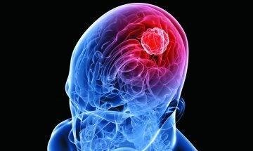 經常頭痛響腦腫瘤警號 六招加快康復進度