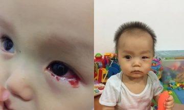11個月男嬰患紅眼症流血淚 家姐發高燒 弟弟揉眼感染病毒