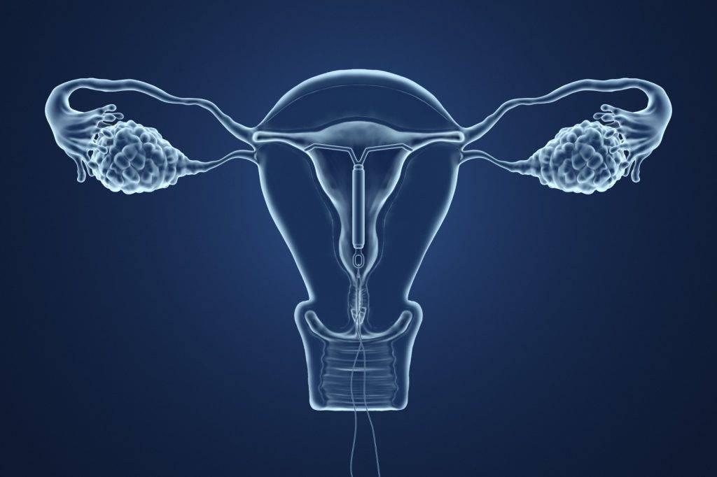 媽媽2年前戴子宮避孕器 BB手執子宮環出生