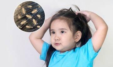 頭蝨困擾女童 母誤信髮型師 替2女噴殺蟲劑釀中毒