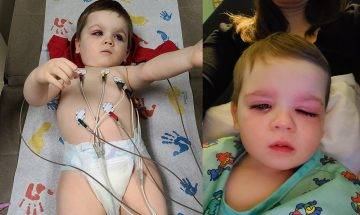 玩具清洗不善易滋生細菌 2歲男童浴室玩具污糟水噴眼發炎險盲