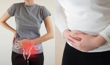 卵巢癌病徵似腸胃病 腫瘤科醫生:曾生育女性也可患上