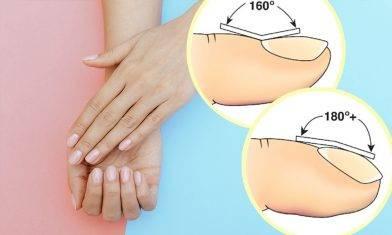 指甲透露健康|5種表徵推斷病變+中醫護甲食療