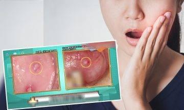 舌頭生痱滋是舌癌症狀?醫生教你4大舌癌病徵+2招分辨痱滋舌癌