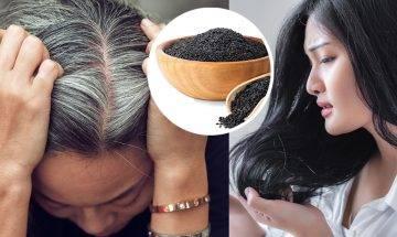 7大白頭髮成因+8招解決方法|白髮增生位置反映疾病警號!