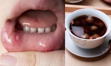 生痱滋湯水食譜-紓緩牙肉腫痛喉嚨痛+改善失眠!潤燥下火 健脾養胃補氣