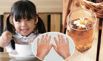 4款去濕茶食譜 中醫推薦健脾去水腫+戒食7款食物!終極10招改善濕疹、氣管痕問題