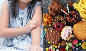 乳化劑提升食物色香味同時增患糖尿病、大腸癌風險|減少攝取乳化劑3大方法