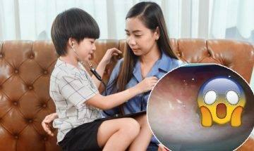 照顧孩子疲累要小休 窩心仔扮醫生檢查  兒子誤將異物塞入媽媽耳內