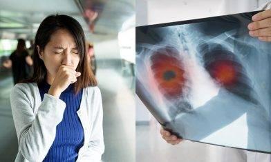 肺癌病徵多樣化不僅咳嗽呼吸不暢 醫生解構2大刻板印象及治療方法