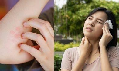 汗癬治療及預防方法 真菌可經人傳人感染 大汗或肥胖等人士較易中招