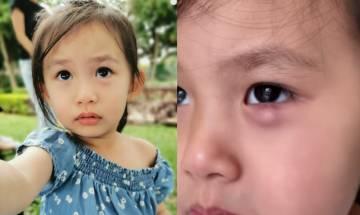 眼挑針成因+預防 困擾8月仍不好 吳日言2歲女 需全身麻醉割眼瘡