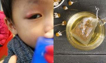 【兒童眼瘡】 洋甘菊眼瘡療法:洋甘菊熱敷一日敷4次