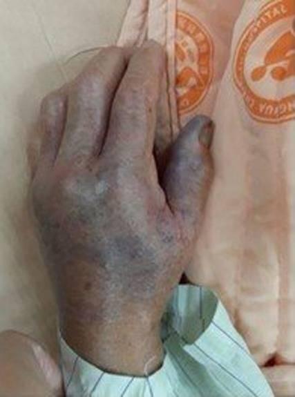 8旬老婦處理海鮮後險截肢(圖片來源:網上圖片)