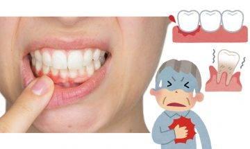 牙周病或會影響心臟健康 懶刷牙、蛀牙問題勿忽視!