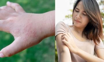 汗皰疹成因+3階段治療方法|中醫:4類食物要戒  附2湯水食譜