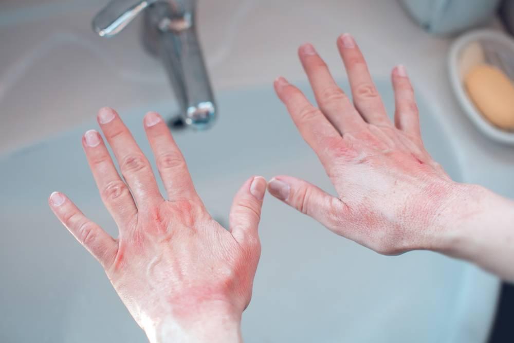 常常洗手可以刺激皮膚,誘發汗皰疹患者圖片,所以要慎選洗手液,例如看清楚pH值,不可以太高,應該要接近皮膚本來酸度(圖片來源:shutterstock)