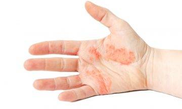 醫生教汗皰疹藥膏點揀+潤膚膏選擇建議 要避免重金屬 附高危食物清單